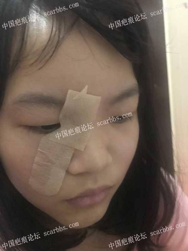 脸部胎记做皮瓣手术,切口太大后悔死了