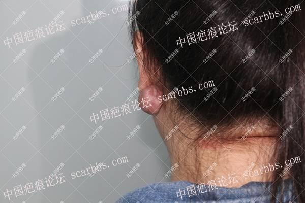 耳朵疤痕疙瘩:手术+4次预防,彻底治愈了