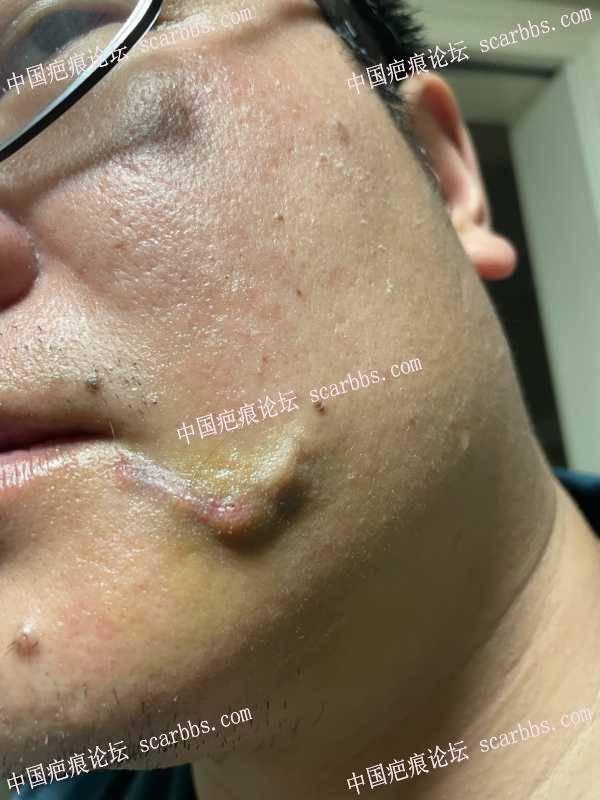 20几年的嘴角疤痕找杨东运医生手术了
