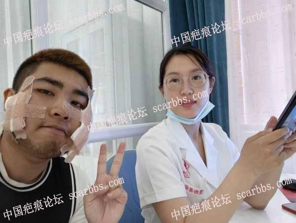 脸上痘坑时隔两年再次来到天津找姚教授