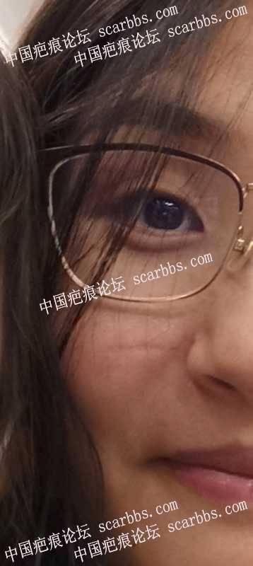 2021.0727杨教授面部凹陷疤痕切除
