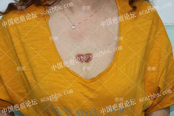 吉林刘女士前胸5年疤痕疙瘩治疗案例