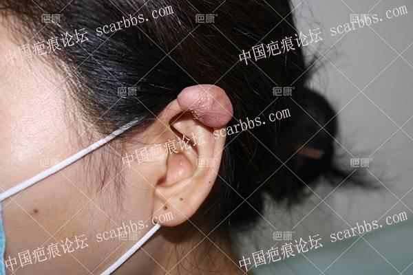黑龙江刘女士左耳10年疤痕疙瘩治疗案例