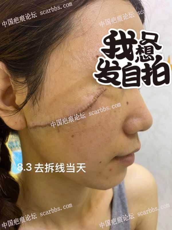 2021.7.28面部疤痕手术重庆杨东运
