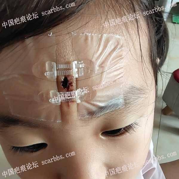 3岁的女宝,摔伤缝了5针。
