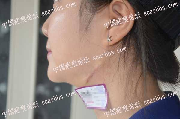 面部疤痕治疗