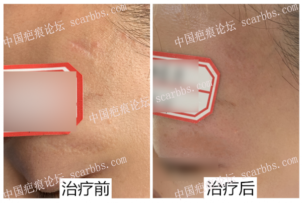 凹陷疤痕治疗反馈