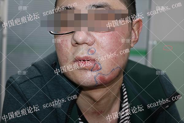 山西闰先生面部2年烧伤疤痕增生治疗案例