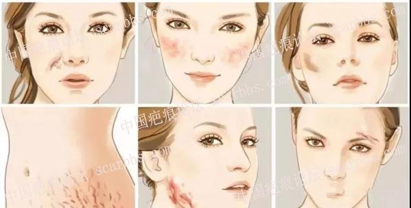 增生疤痕反反复复,应该如何应对期间的疼痛、瘙痒?