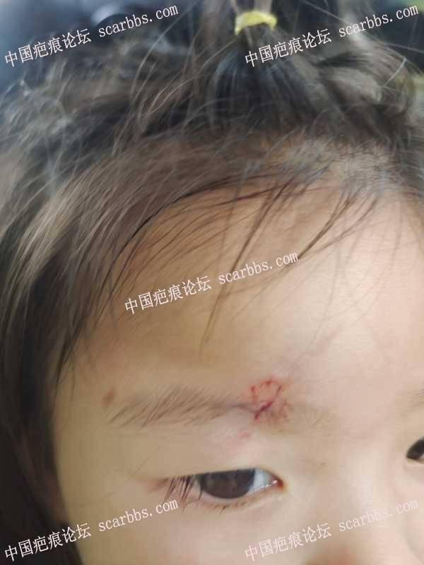 孩子8-4日夜晚摔倒眉毛当时没有缝针
