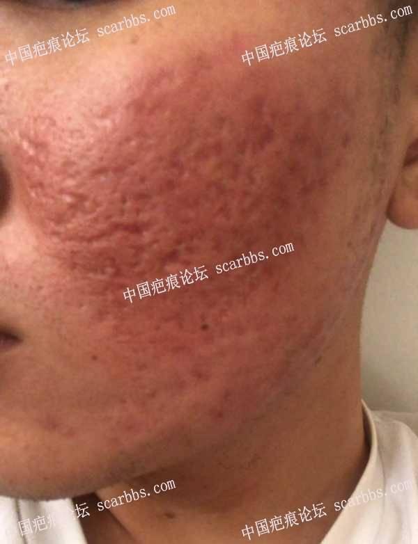 脸颊双侧严重痘坑切缝加磨削修复