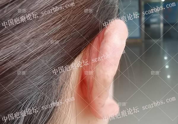 右耳2年疤痕疙瘩,手术切除后5个月恢复的很美观