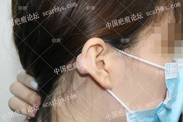 吉林韩女士左耳5年疤痕疙瘩治疗案例