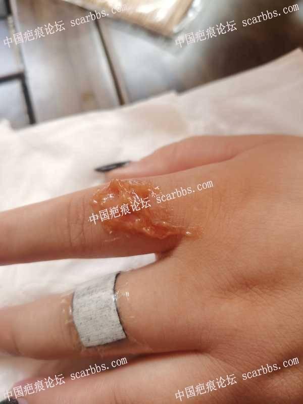 手指被热油烫伤,这个包真大