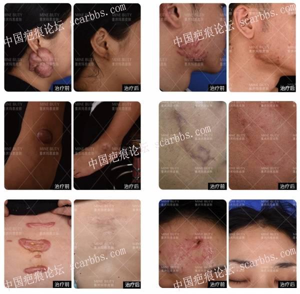 身体哪些部位是疤痕疙瘩好发部位?