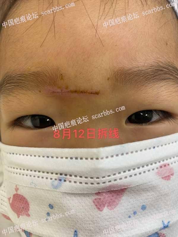 疤痕护理的征程开始了