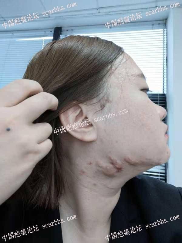 腮部疤痕疙瘩切除哪位医生技术最好