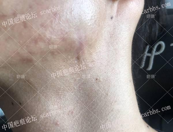 江西卢先生下颌2年疤痕疙瘩治疗案例