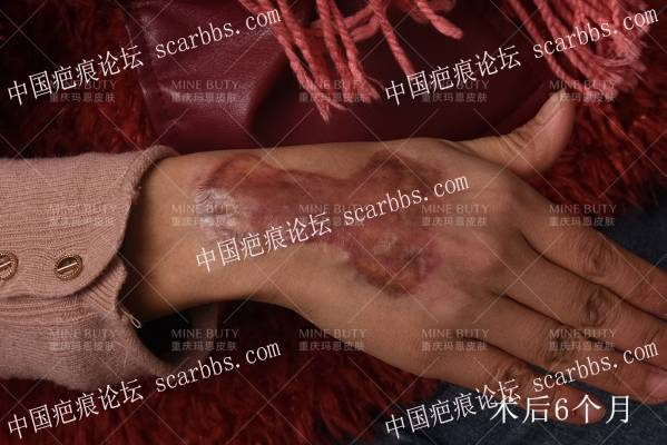 """疤痕疙瘩在中医上为什么被称为""""蟹足肿""""?"""
