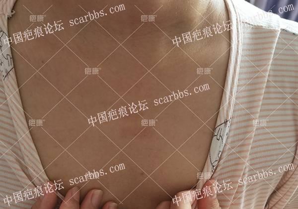河北岂女士前胸疤痕疙瘩治疗案例