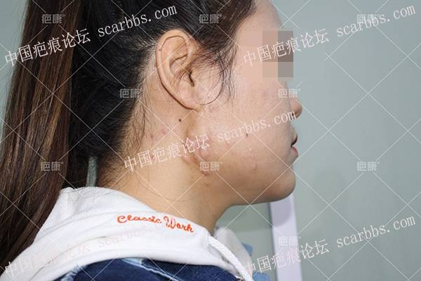 【治疗案例】安徽邵女士双颌下5年疤痕疙瘩彻底治愈
