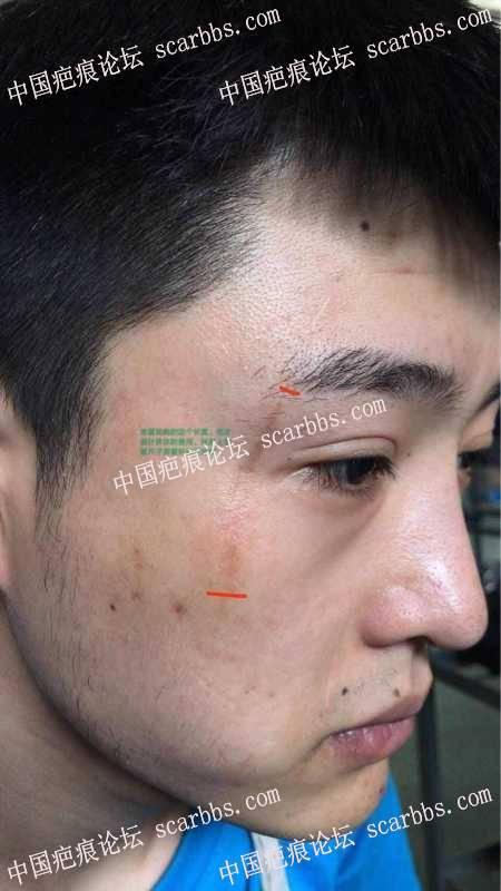 脸部外伤疤痕手术