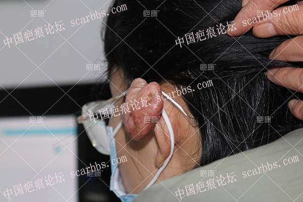 内蒙古孙女士左耳7年疤痕疙瘩治疗案例