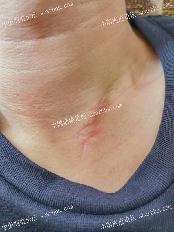 请问我这种色脱疤痕激光治疗是不是不管用了
