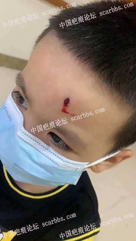 宝贝4岁 昨天被荡起的秋千碰到额头缝了3针