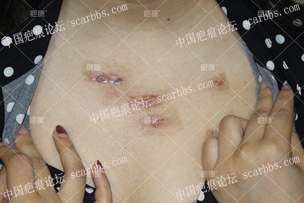 重庆余女士前胸多个疤痕疙瘩治疗案例