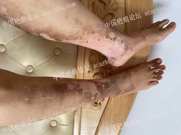 大面积浅二度烧伤半个月了,昨天下雨碰到了伤口,脱皮部分肉是白色的,会留疤吗