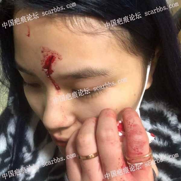 一月份额头受伤然后缝的美容针 ,疤痕如何修复?