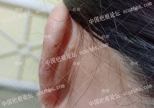 【四川疤友】宋女士左耳8年疤痕疙瘩治疗案例