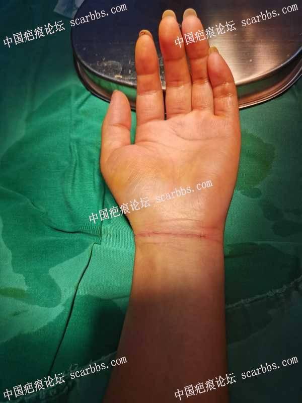 腕部割伤!急诊美容缝合相当重要!