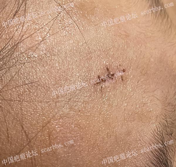 额头磕伤缝针后13天拆线第6天状态,关于减张贴的新疑问?