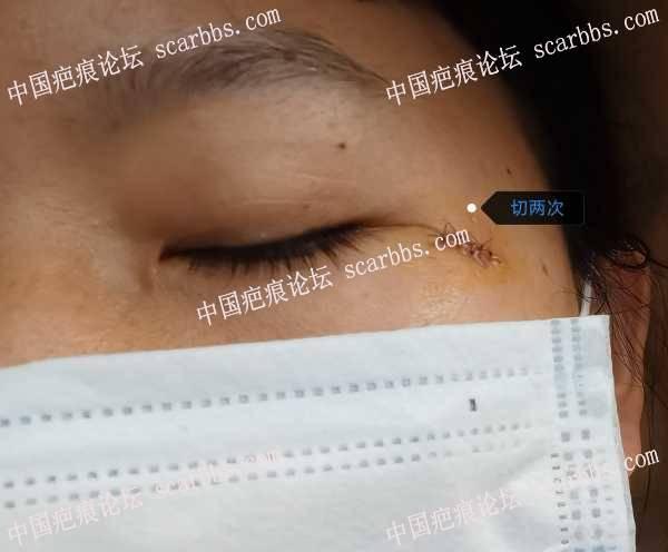 疤痕切缝了,就是不擅长护理,咋办