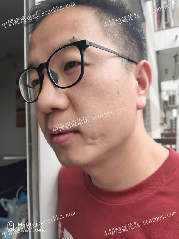 左脸颊的手术凹陷型疤痕