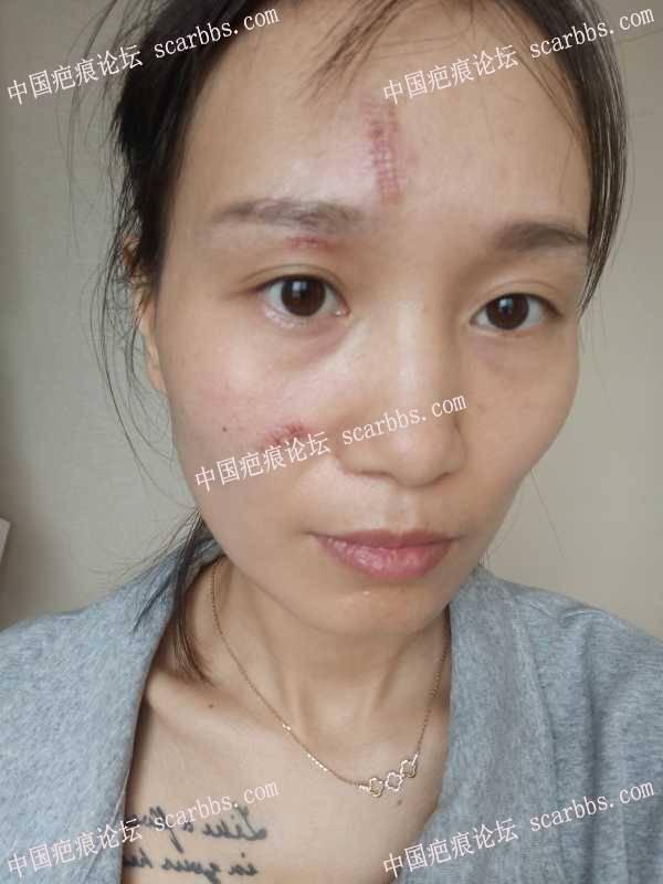 十几年水痘坑凹陷疤痕切缝