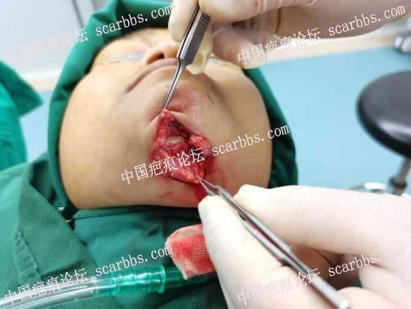 下颌外伤不好处理~因为这个部位活动度比较大!