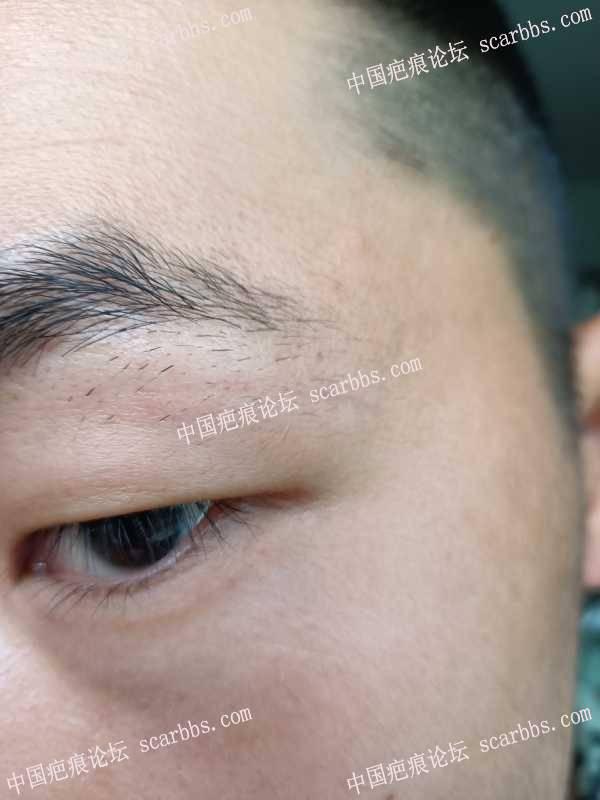 眼皮部位疤痕,祛疤一百多天了