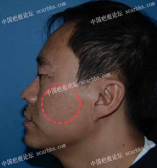 面部疤痕痘坑治疗