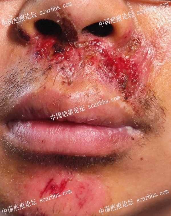 求教各位,鼻子下方缝针了,怎么减少疤痕?