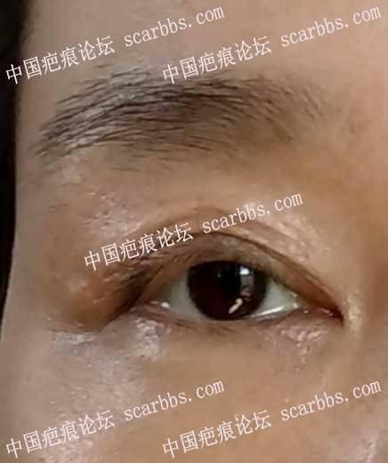眼睛老疤痕能治吗