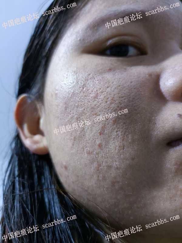 脸上这疤痕有谁知道这是什么情况?