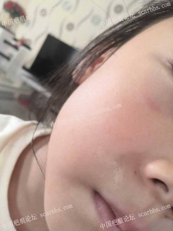 两年的疤痕。发白,不平整,还能治吗