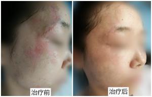 女孩脸部烫伤疤治疗反馈[tag]