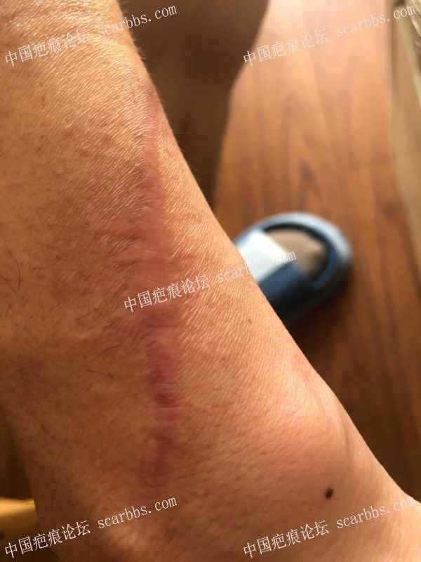 手臂疤痕术后5个月,如何修复?
