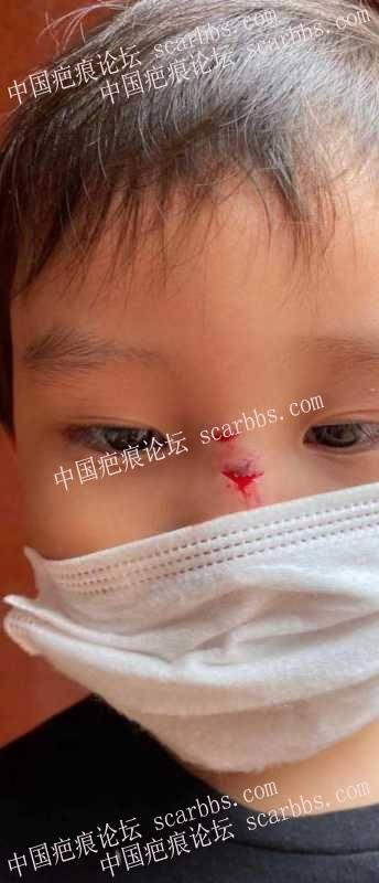 请教各位热心人士 孩子的伤疤现在该如何处理