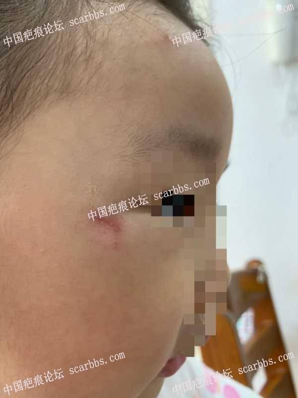 孩子磕伤眼角,求护理指导