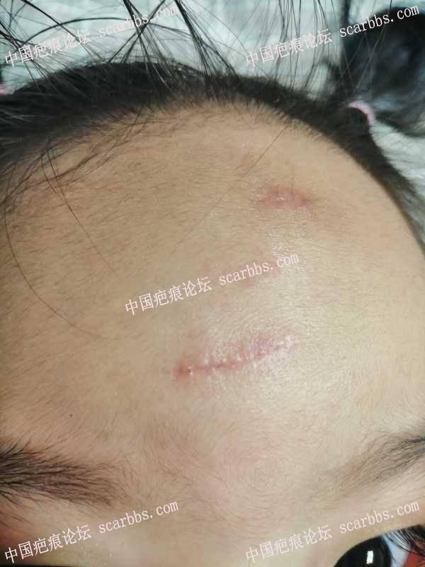 宝宝额头磕伤两处疤痕有点发黑